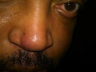 Ed's stuffy nose